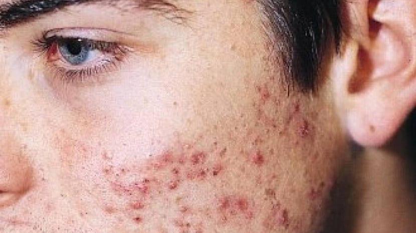 Reducción del acné
