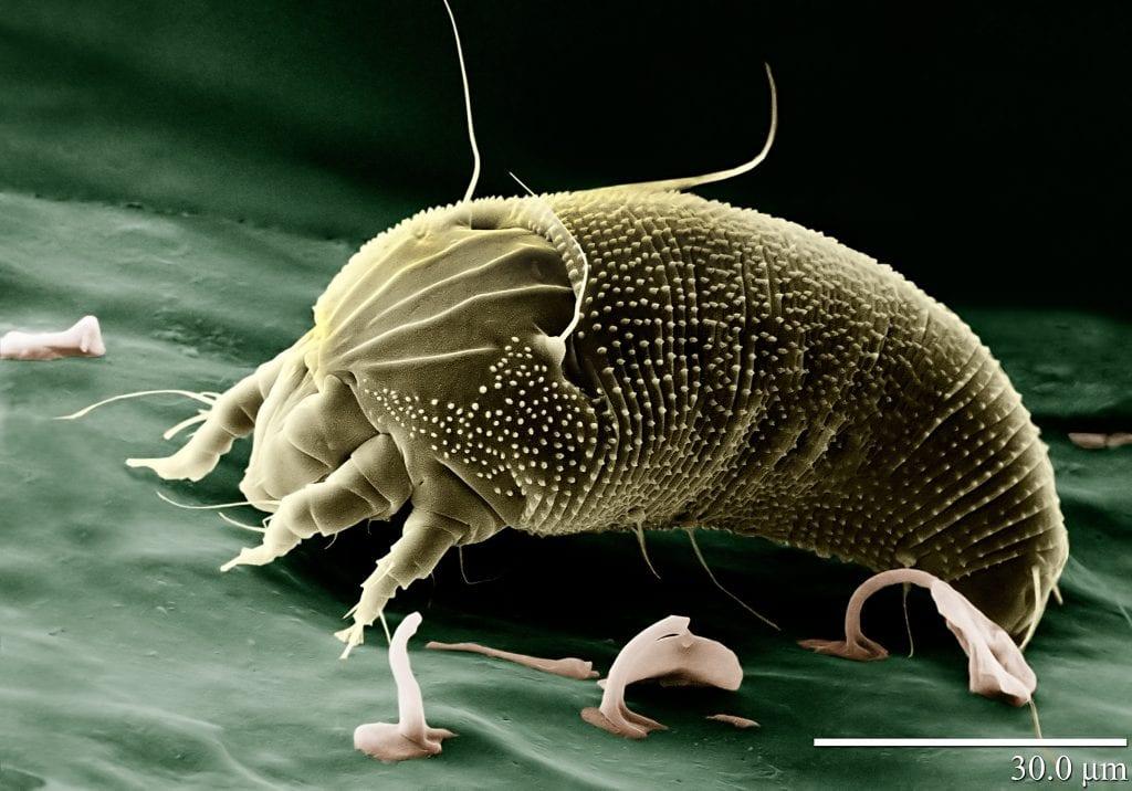 Aceria vista por el microscopio