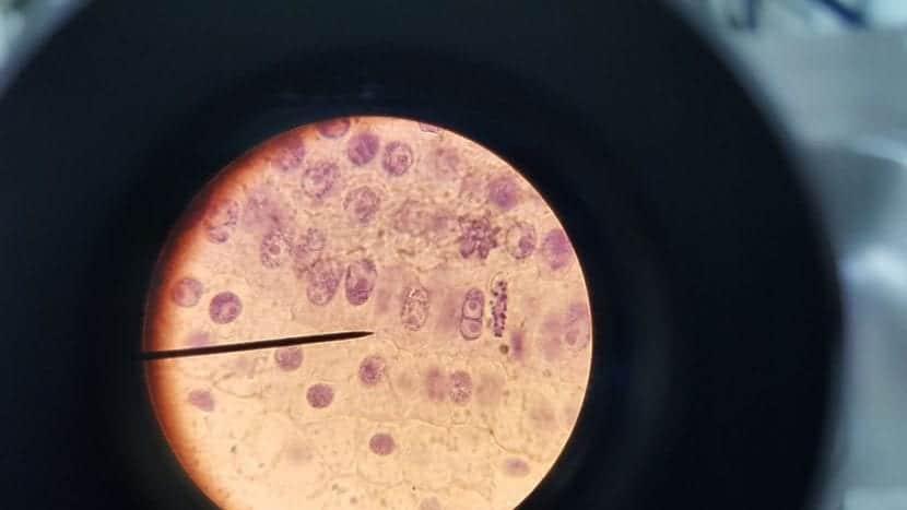 Mitosis de las células vegetales