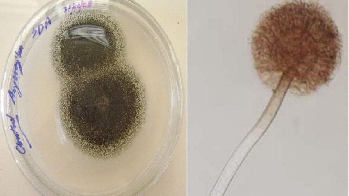 aspergillus niger al microscopio